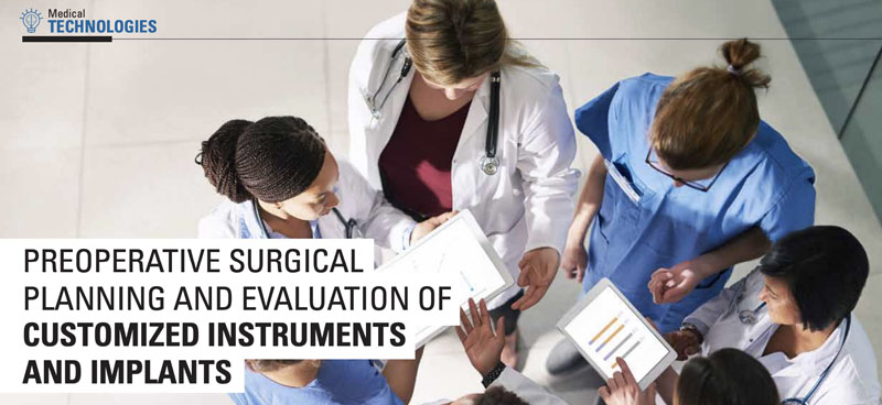 Preoperative Surgical Planning and Evaluation of Customized Instruments and Implants