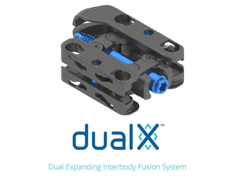 dualX T/PLIF 12-Degree hyperlordotic interbody cage