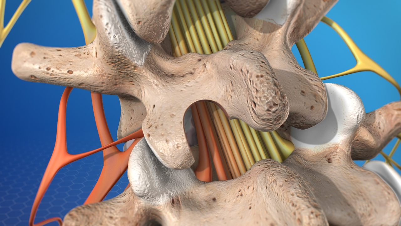 Modern Advances in Minimally Invasive Microscopic Laminectomy
